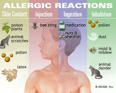 درمان آلرژی به گربه